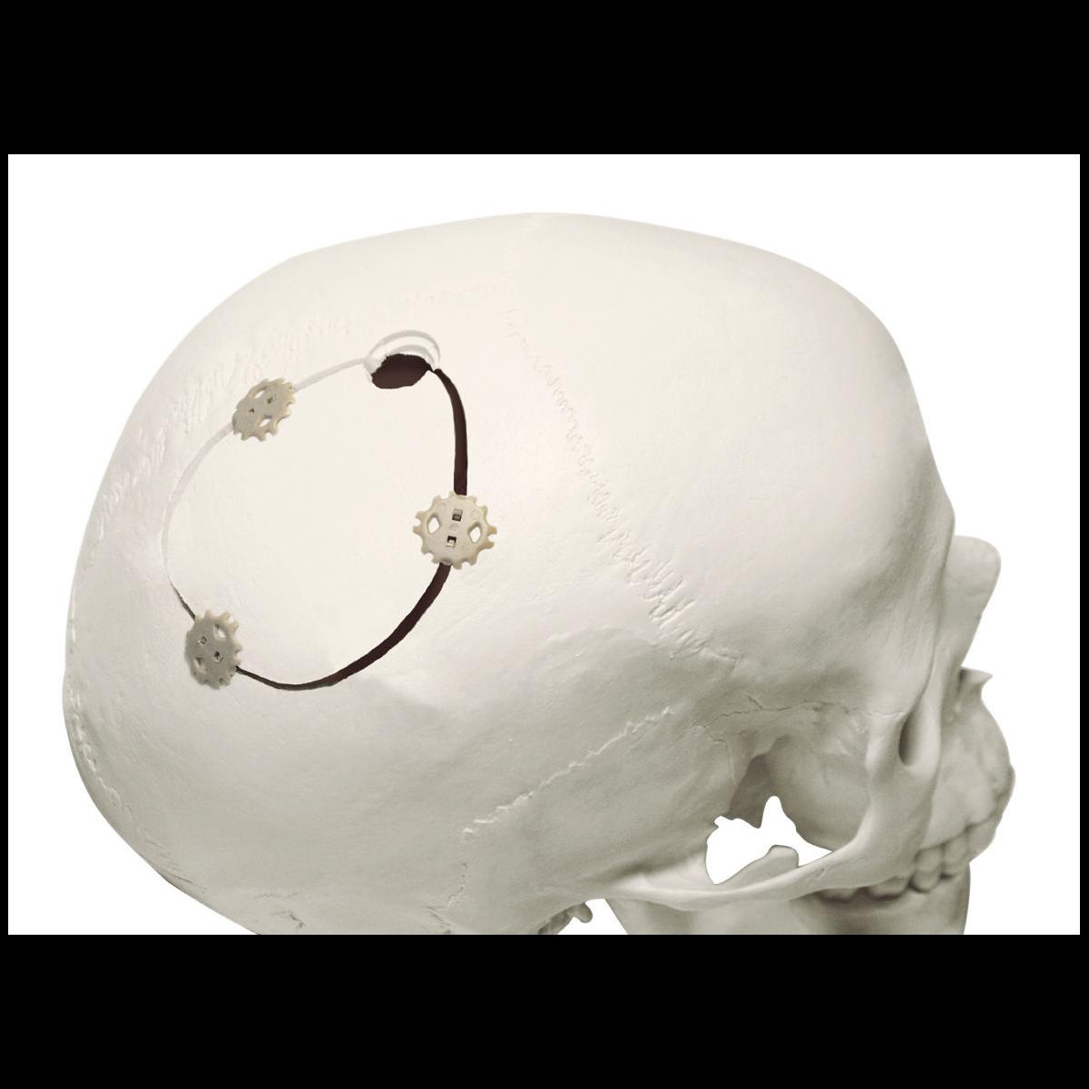 Cranial fixation system