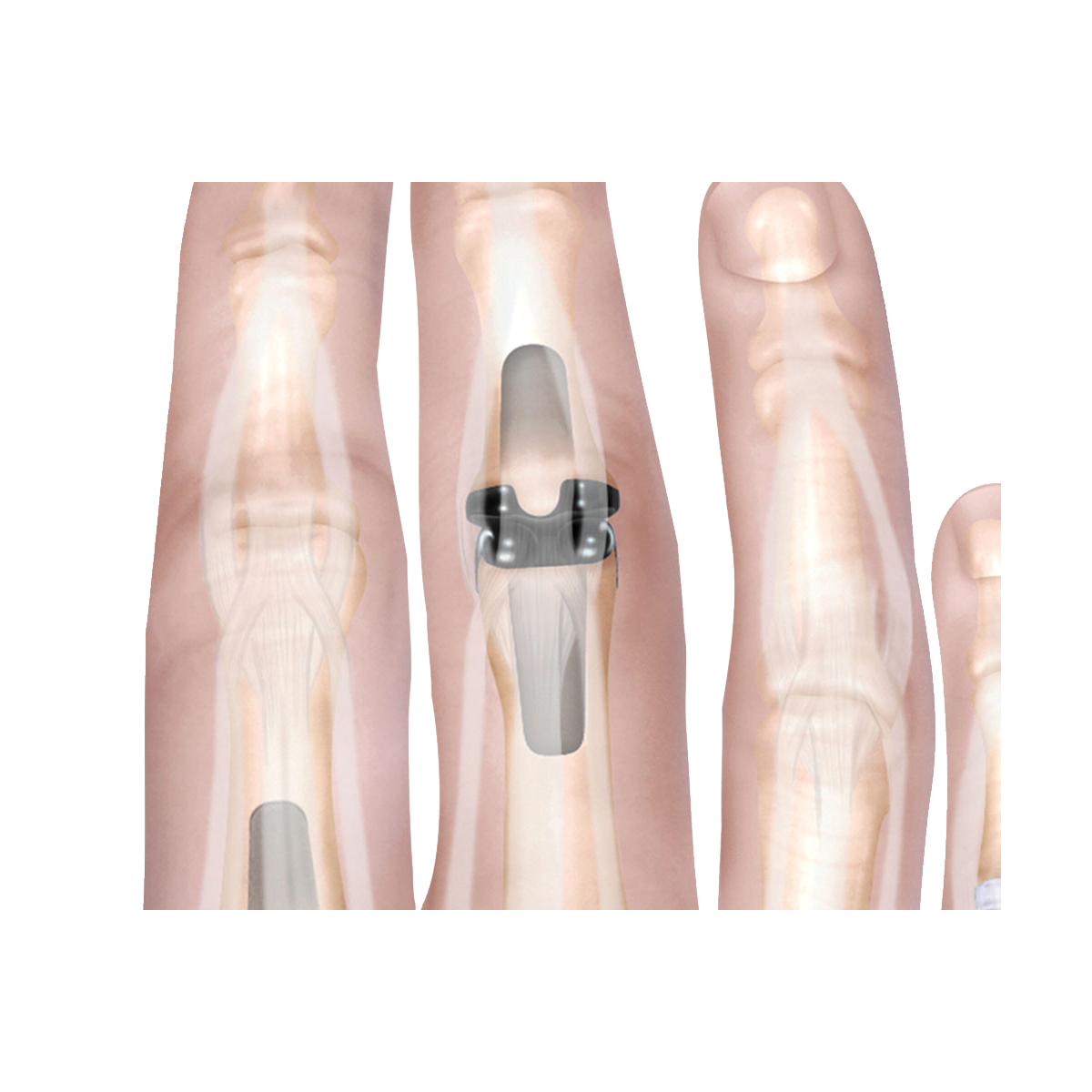 Digit joint implants
