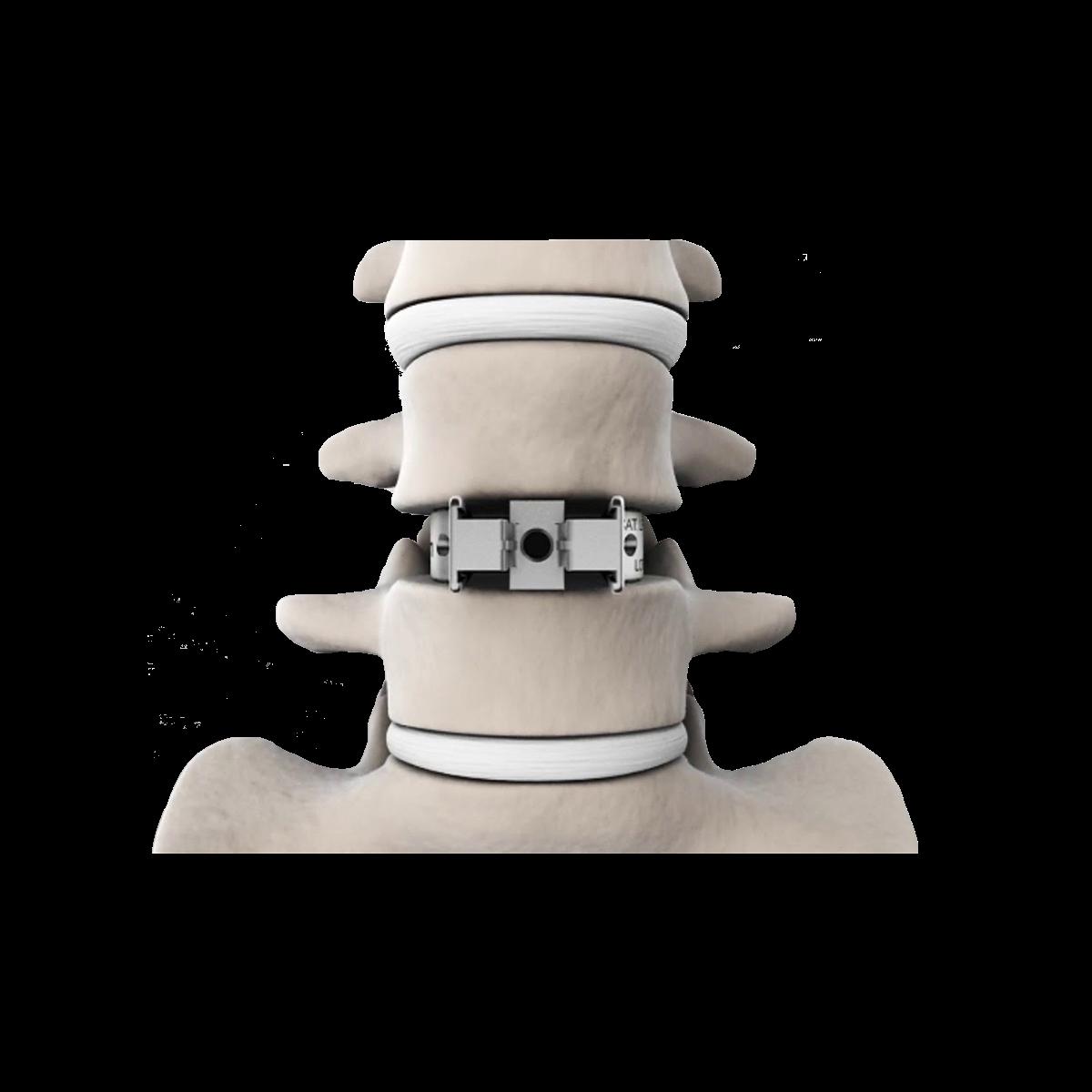 Disc prosthesis