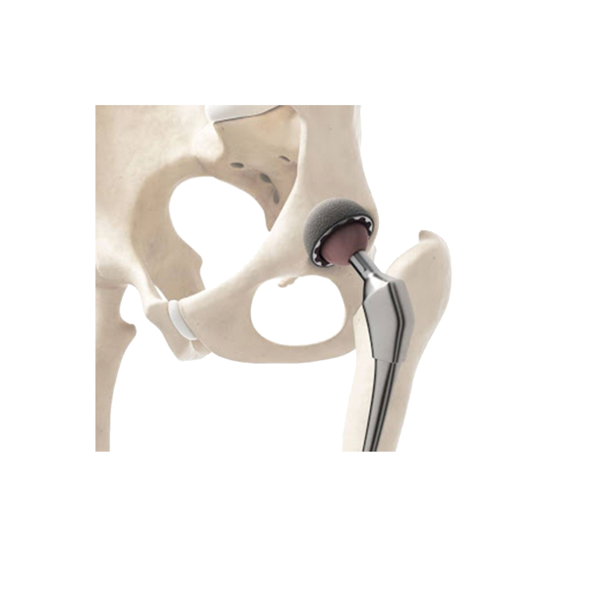 Femoral head prosthesis