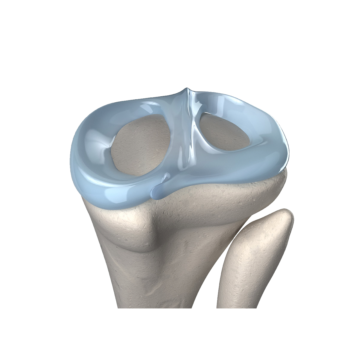 Meniscus implant