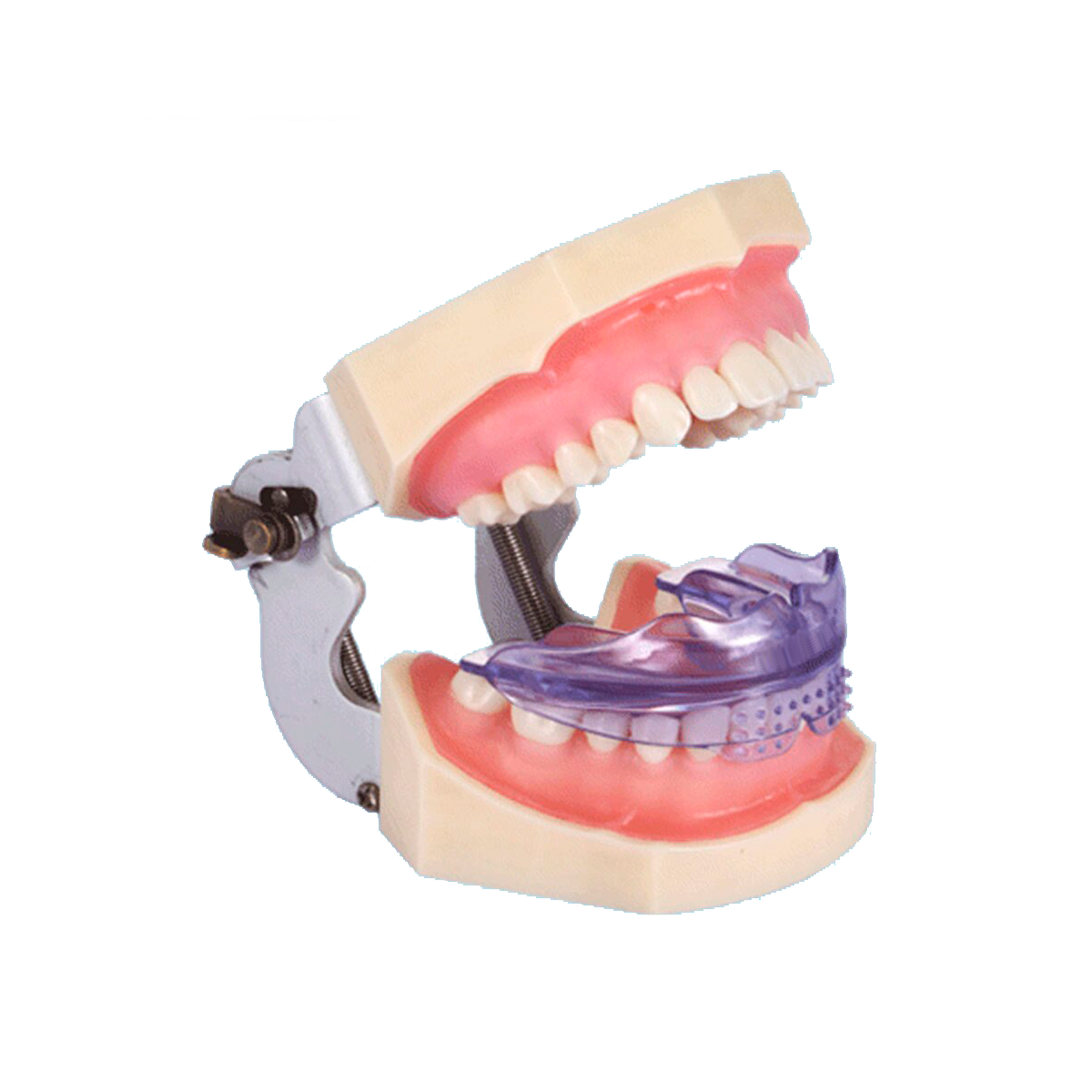 Orthodontic mouthpieces