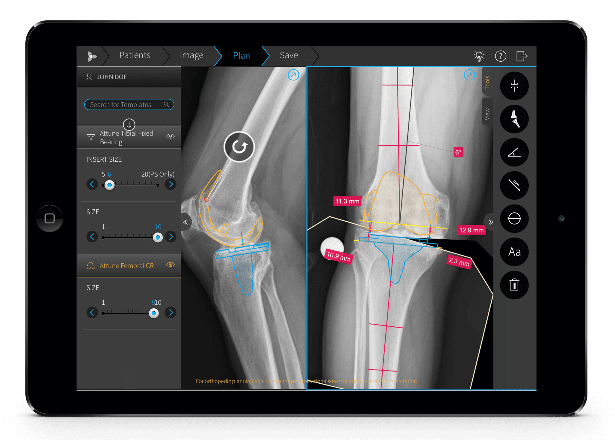 Orthopedic surgery navigation software